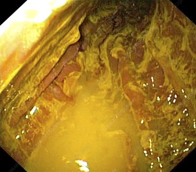 Bile reflux - Stock Image - C001/2842 - Science Photo Library