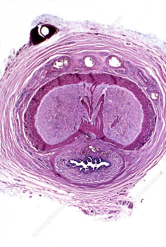 penisul la microscop