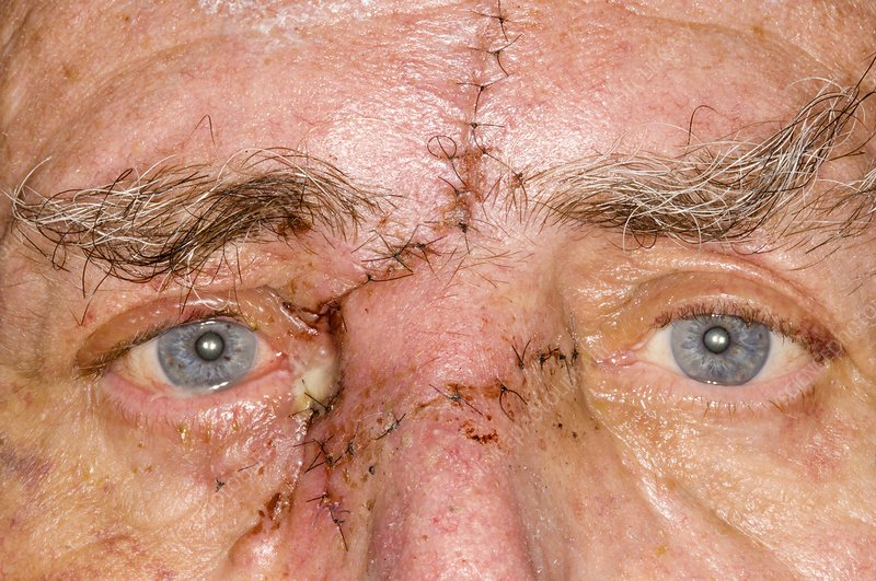 Face Wound After Removing Skin Cancer Stock Image C009 0120 Science Photo Library