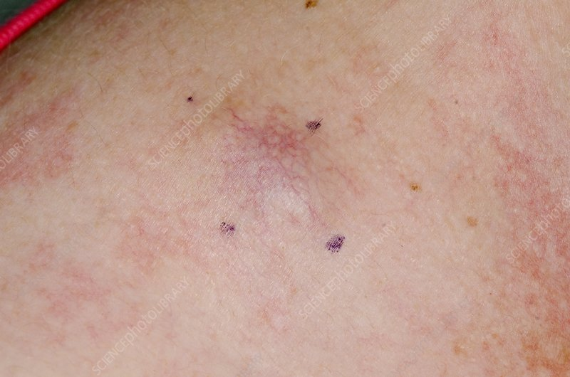 Metastatic Melanoma Skin Cancer Stock Image C013 5884 Science Photo Library