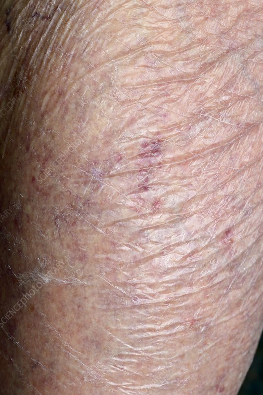 steroids and skin thinning