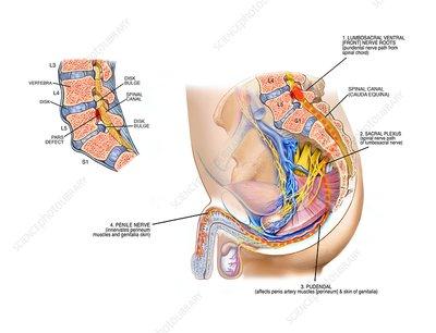 Hipospadias proximal tratat printr-o singura operatie la un baiat de 11 luni | premiidubledoncafe.ro