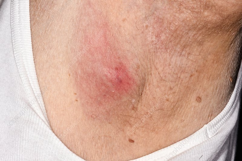 Infected sebaceous cyst - Stock Image - C026/9162 - Science
