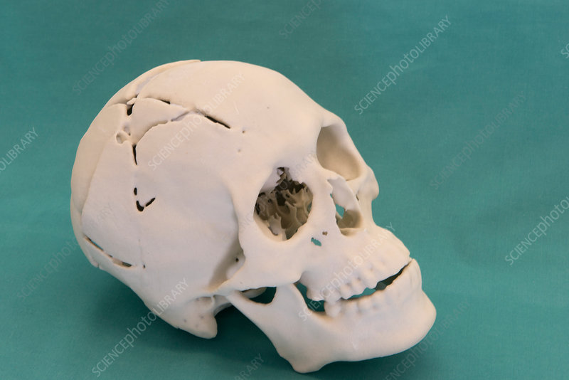 Forensics 3D autopsy reconstruction - Stock Image - C029/9650