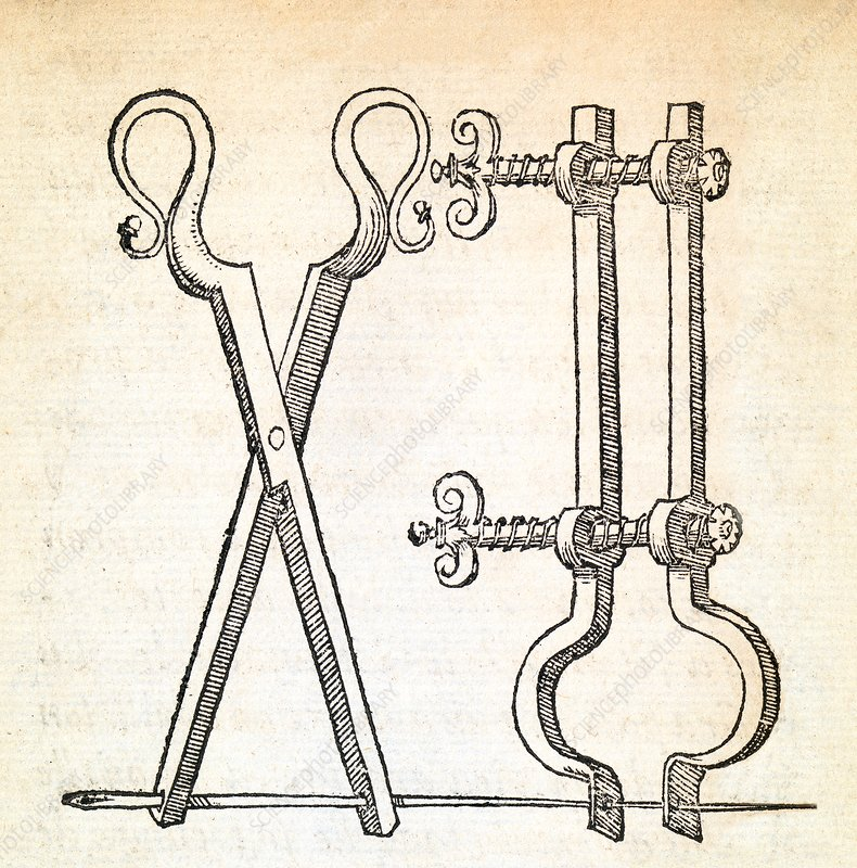 Hernia surgery instruments, 16th century - Stock Image - C030/3718