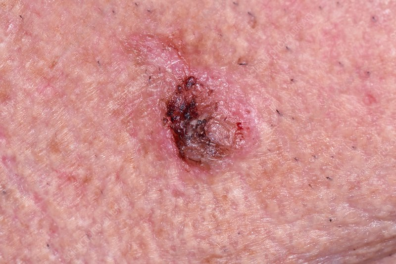 Squamous cell carcinoma skin cancer - Stock Image - C034/5457 - Science  Photo Library