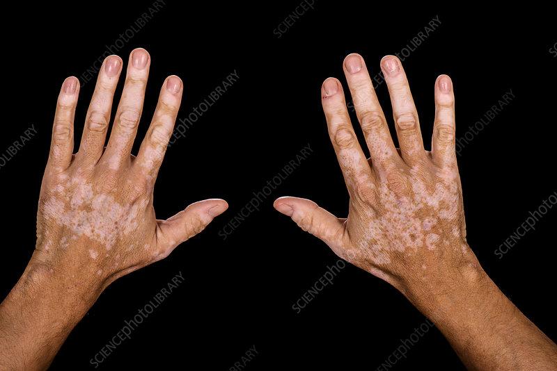 Vitiligo Skin Condition Stock Image C038 2286 Science Photo Library