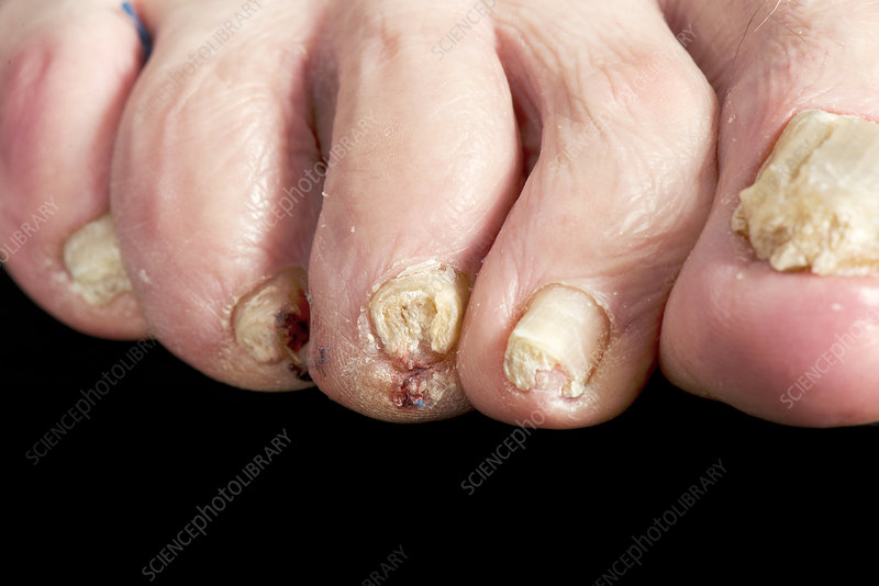 Psoriasis of the toenails - Stock Image - C038/9471 - Science Photo ...