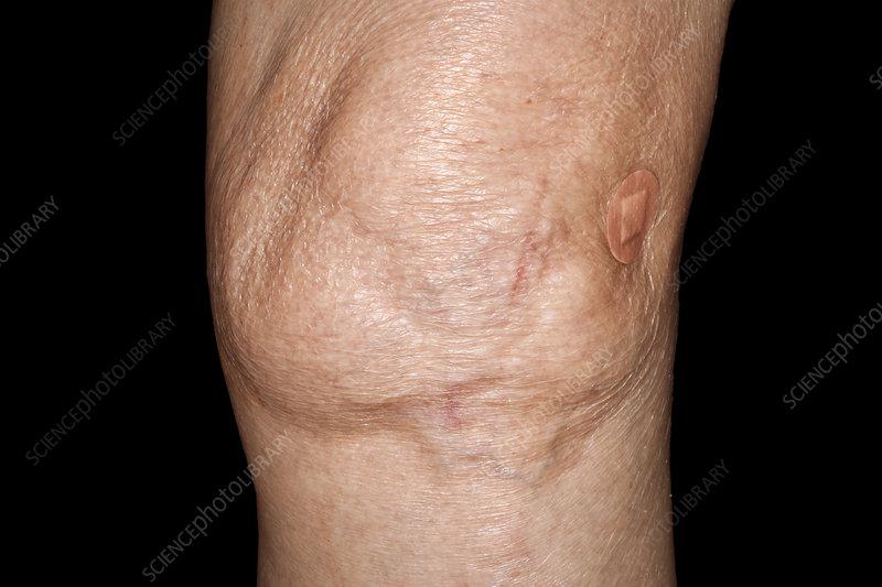 Swollen Knee In Osteoarthritis Stock Image C040 0993 Science Photo Library