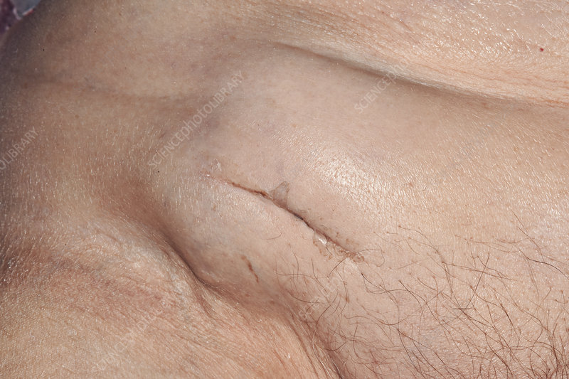 Groin for nodes lymph remedies in natural swollen 7 Easy