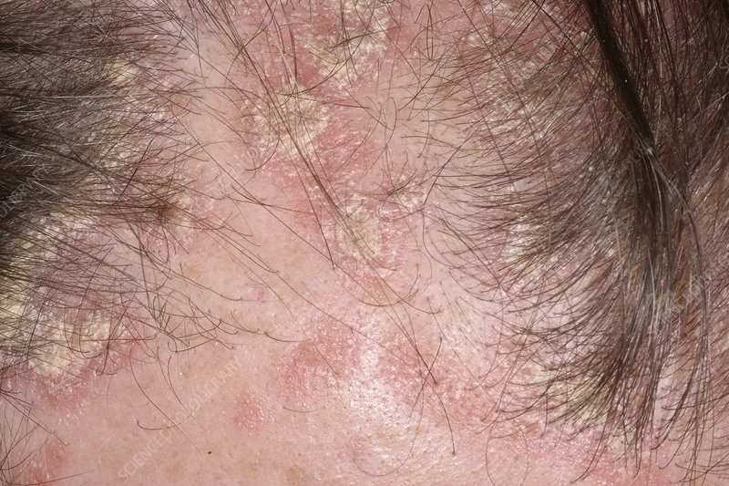 psoriasis scalp pictures