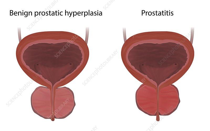 Prostatitis hypoplasia)