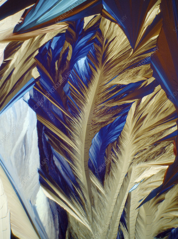 Carnitine crystals, light micrograph