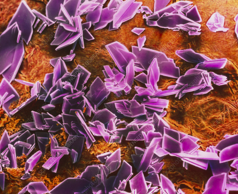 Crystals of albumin on a wound