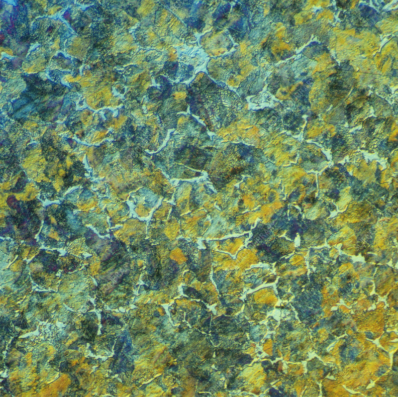 High carbon steel, light micrograph
