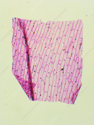 LM of layer of onion cuticle