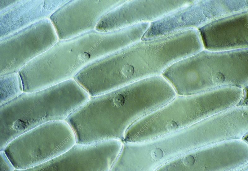 LM of cells in the epidermis of an onion