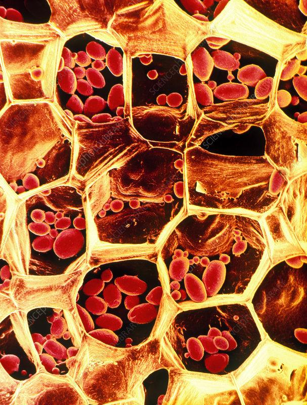 Starch grains in potato cells