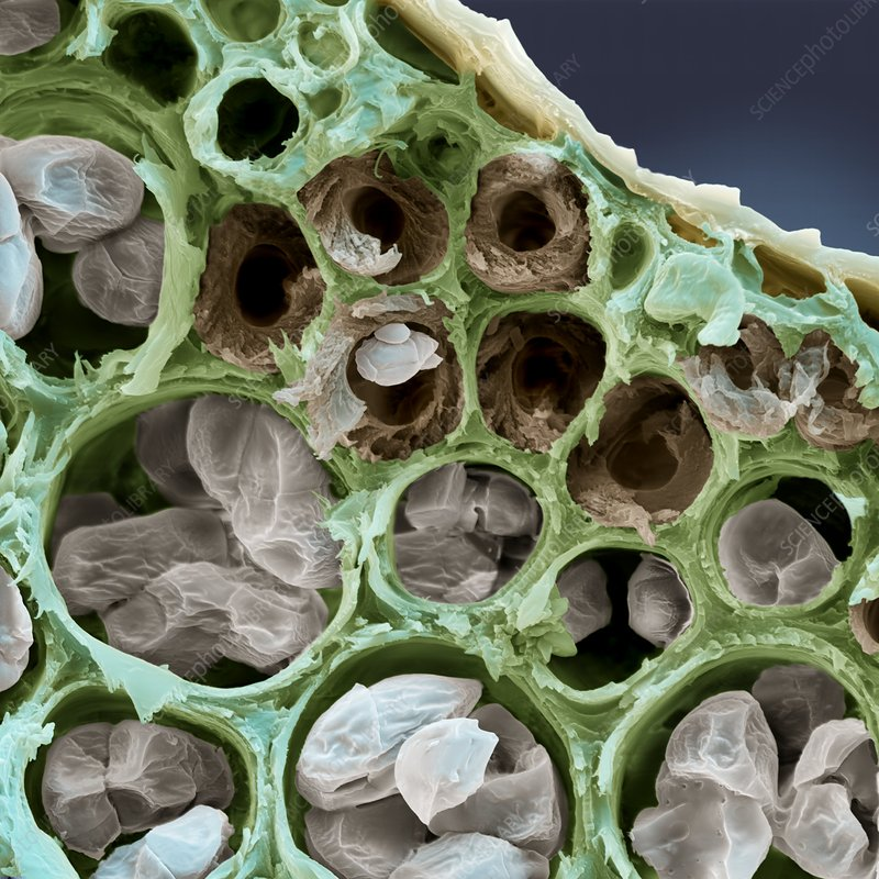 Starch grains, SEM