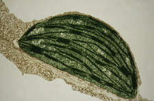 TEM of chloroplast from a tobacco leaf