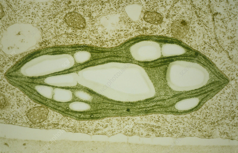 Chloroplast in protonema of moss