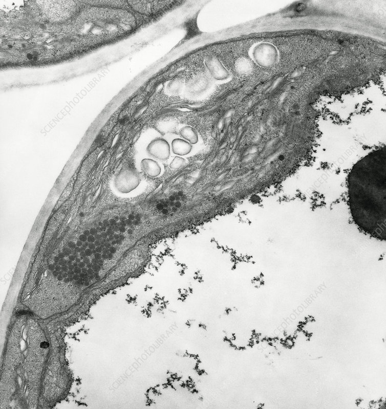 TEM of a chloroplast in a leaf cell