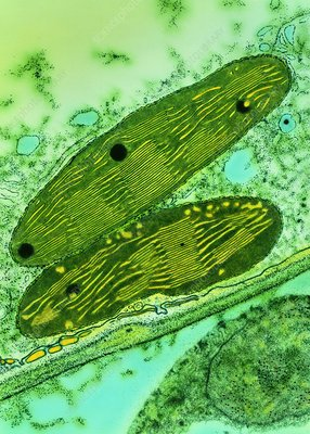 TEM of chloroplasts from a pea plant