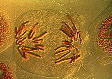 Anaphase of mitosis in bluebell cells