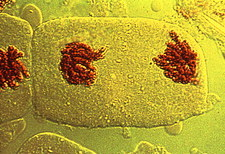 Telophase of mitosis in bluebell cells