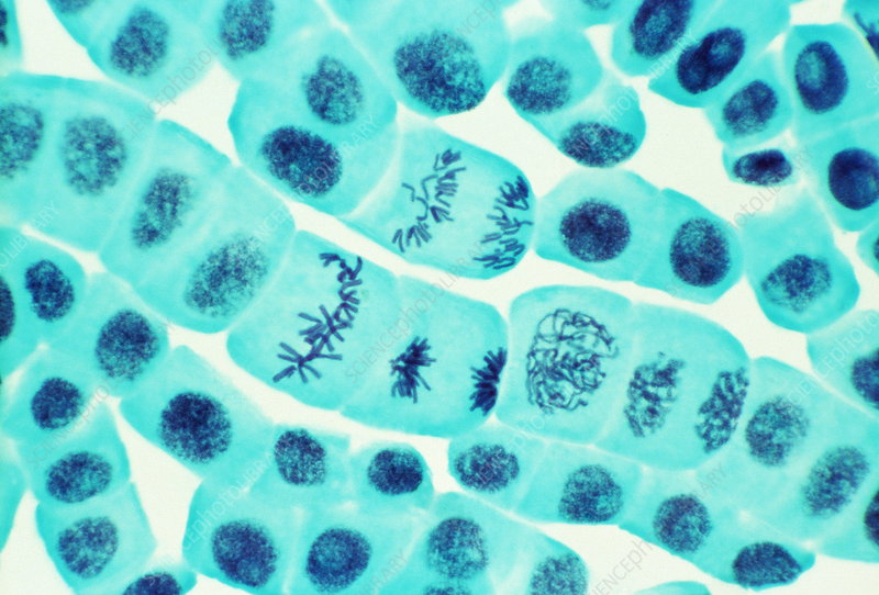 Plant cell mitosis, light micrograph