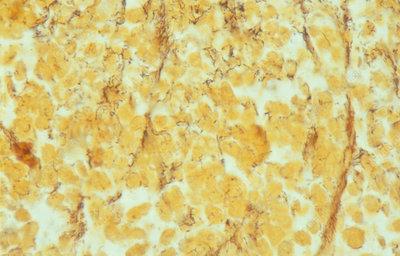 Treponema pallidum spirochaete bacteria