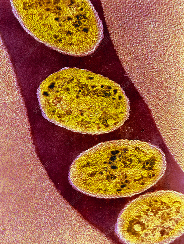 Coloured TEM of Borrelia sp. bacteria