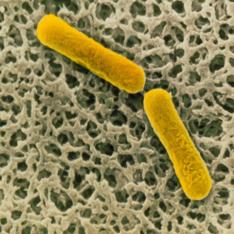 SEM of clostridium botulinum bacteria