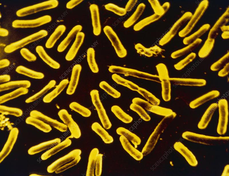 Yersinia enterocolitica bacteria