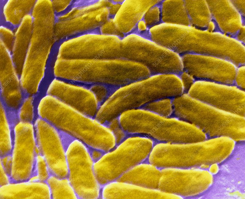 F/col SEM of Pseudomonas aeroginosa
