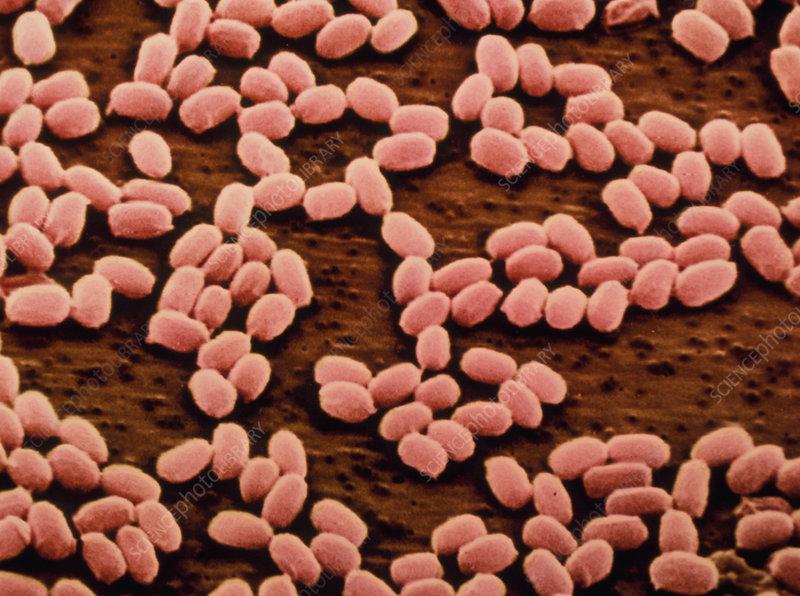 Coloured SEM of anthrax bacteria spores
