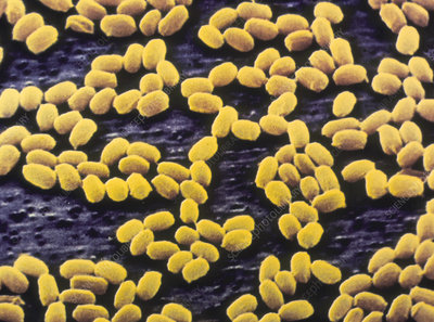 Anthrax bacteria spores