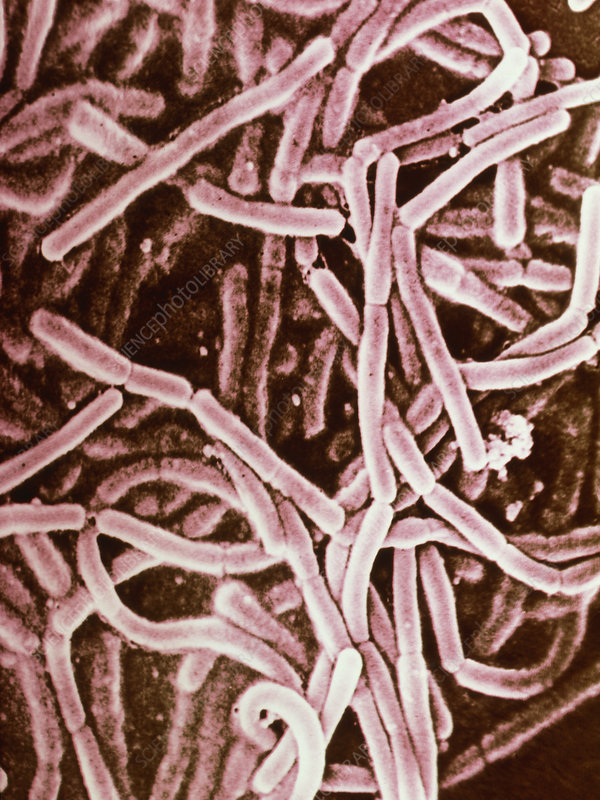 lactobacillus bulgaricus Lactobacillus acidophilus is a type of bacteria found in your intestines it's a member of the lactobacillus genus of bacteria, and it plays an important role in human health () its name gives.