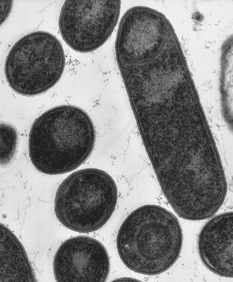 TEM of Clostridium botulinum, sporulating