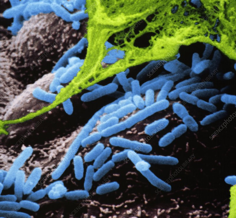 SEM of Haemophilus influenzae bacteria