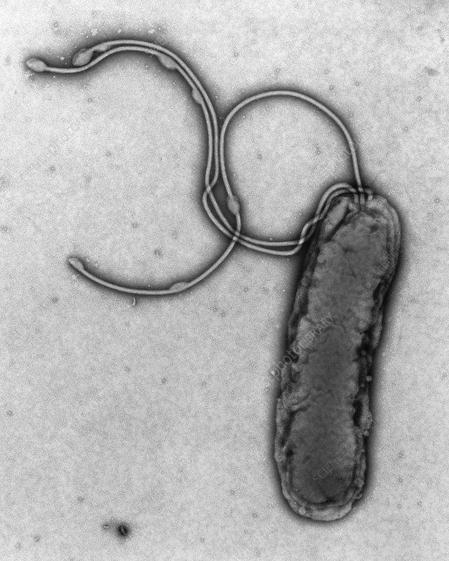 TEM of a Helicobacter pylori bacterium