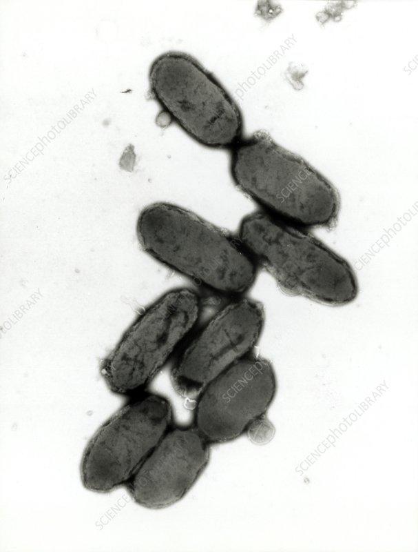 TEM of a Yersinia pestis bacterium