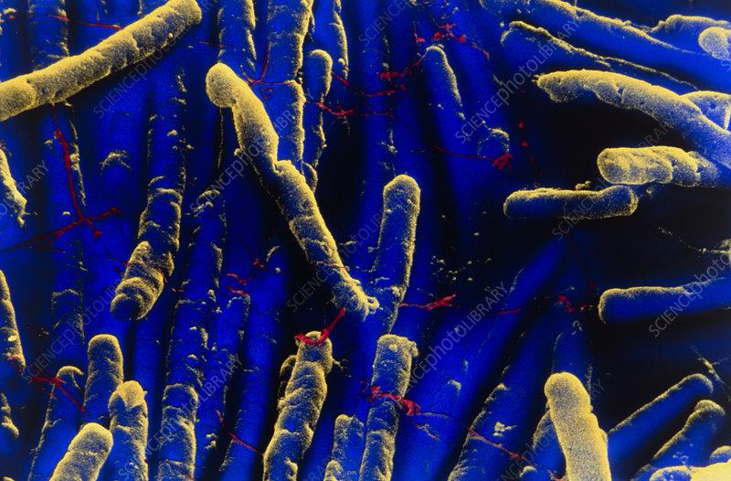 Clostridium difficile bacteria