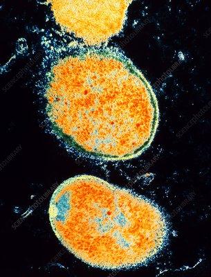 Helicobacter pylori bacteria