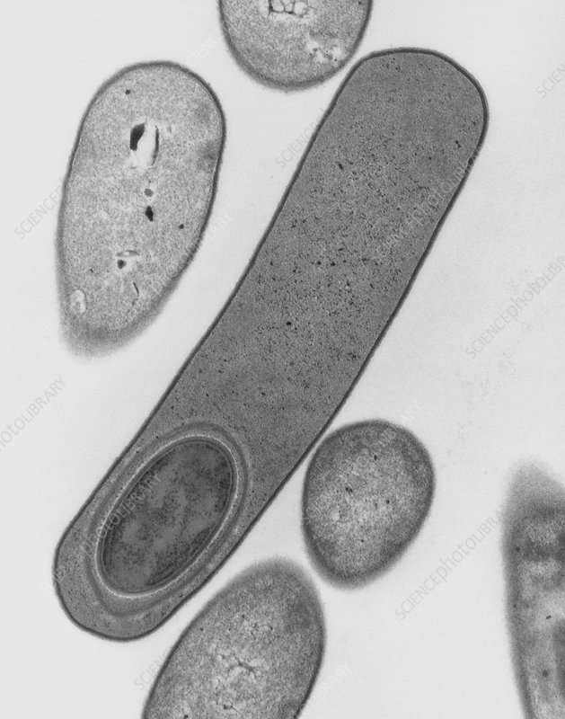 Clostridium difficile forming endospore