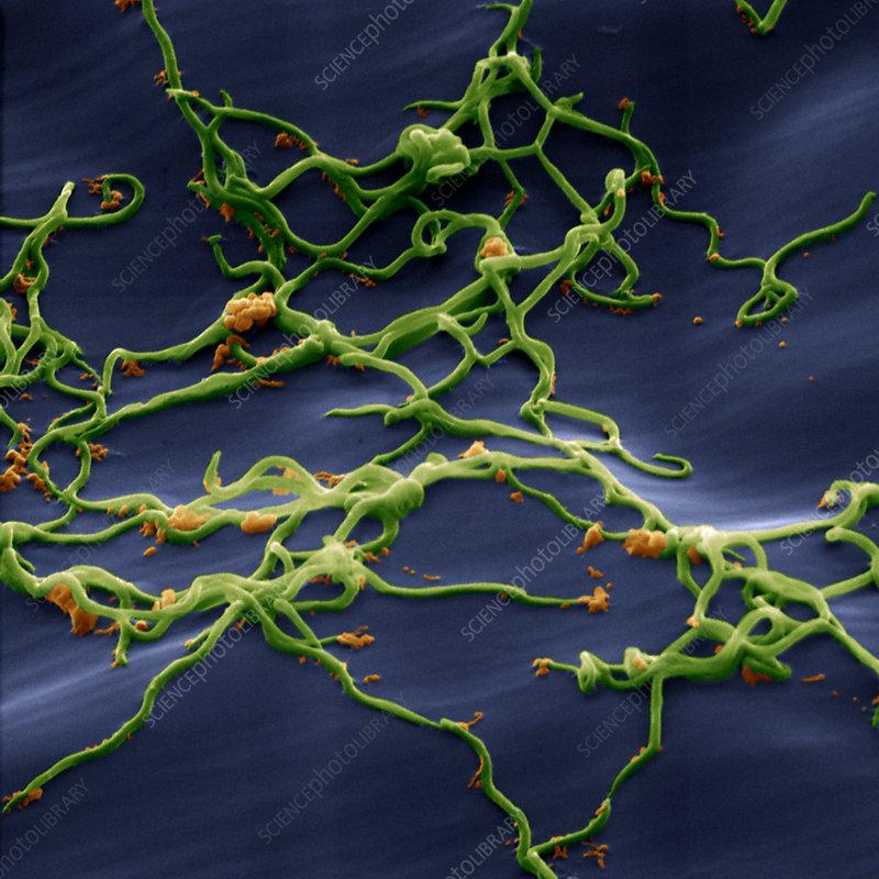 Lyme disease bacteria, Borrelia