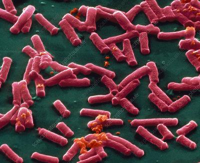SEM of clostridium perfringens bacteria
