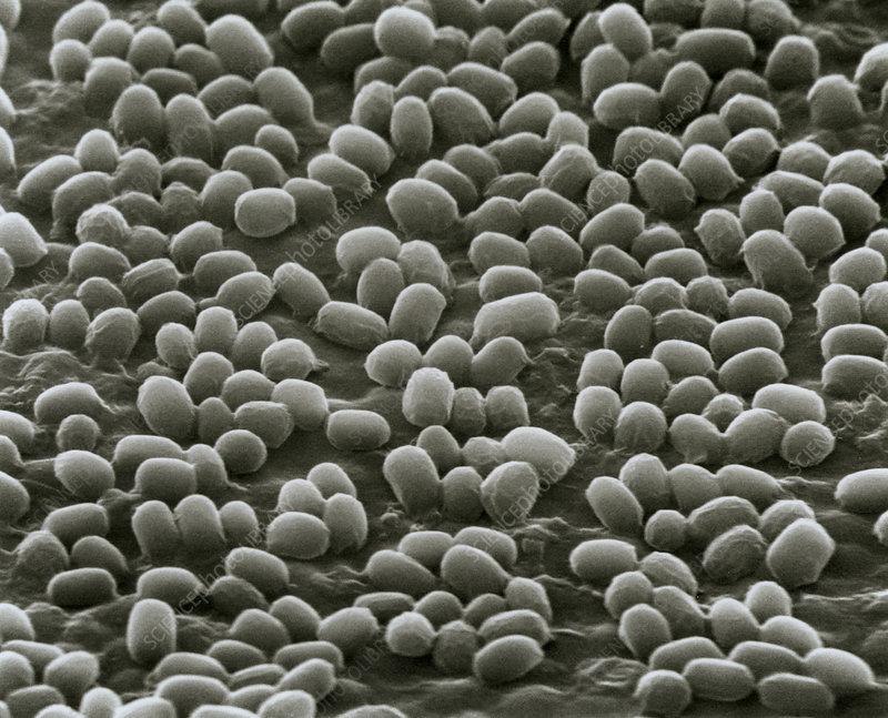 Spores of Bacillus anthracis bacteria