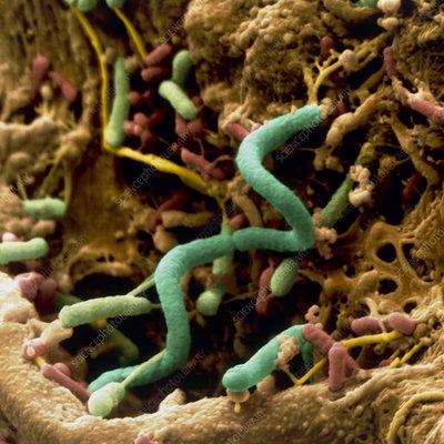 Spirochaete bacterium in compost