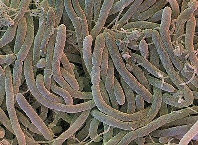 Soil bacteria sem